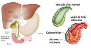 vesicula-biliar3