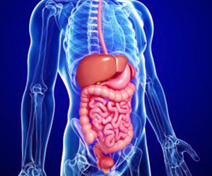 Cirugía Laparoscópica en reflujo gastroesofágico
